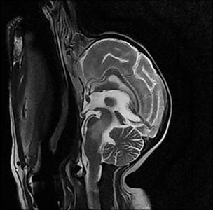 Image IRM : 2 T2 lésion tronc cérébral