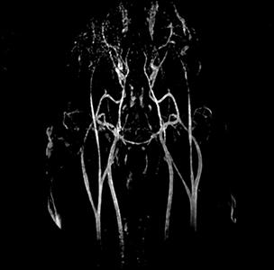 Image IRM : 6 angio IRM