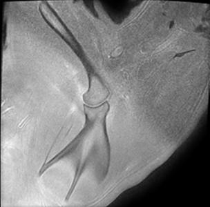 Image IRM : 8 ZTE scapula