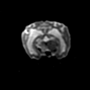 Image IRM : 9 diffusion encéphale